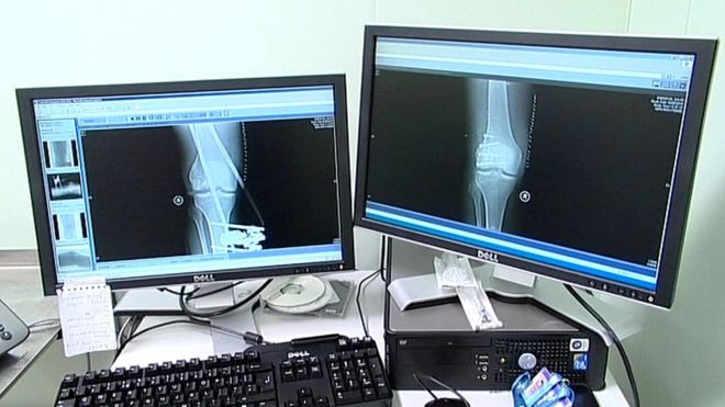 Quarter of radiologist posts in Northern Ireland vacant